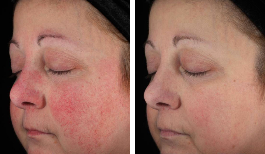 Rosacea Laser Treatment How To Tame Physical Symptoms And