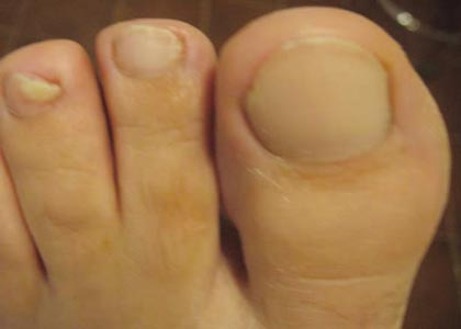 Fungal Nail Infection After