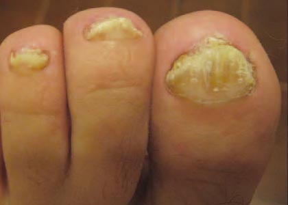 Fungal Nail Infection Before