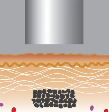 Laser Tattoo Removal Mechanism