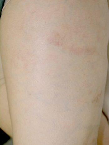 Leg Veins - After