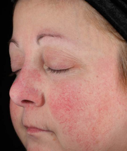 Rosacea Before