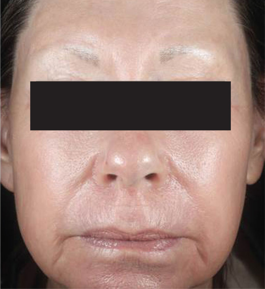 Skin Resurfacing After