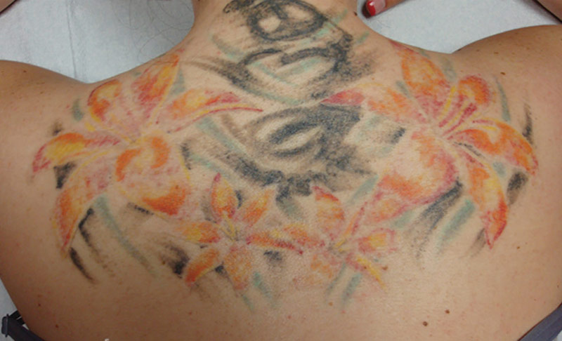 Tattoo Complete Removal - Stage 2