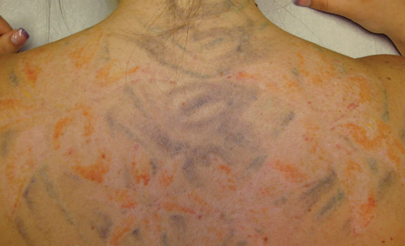 Tattoo Complete Removal - Stage 3